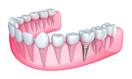 a model of dental implants from Pasco, WA